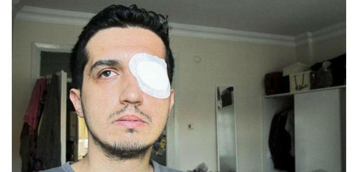 Gezi'de gözünü kaybeden akademisyen İçişleri'ni tazminata mahkum ettirdi