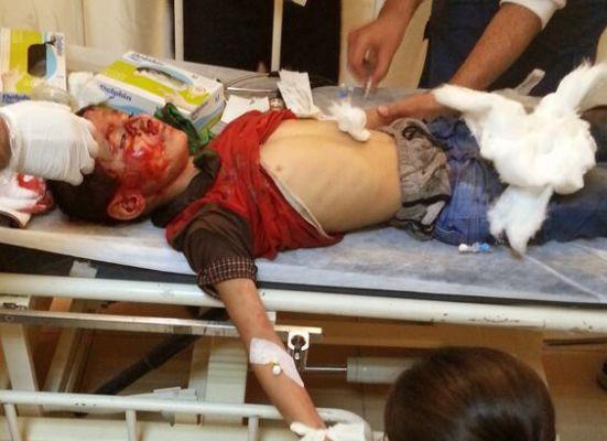 10 yaşındaki Mehmet gaz fişeğiyle vuruldu